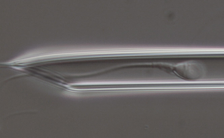 Взимане на сперматозоид
