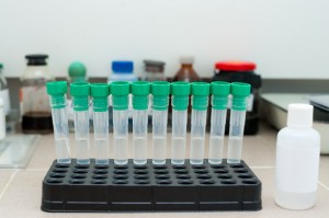 test tubes at clinic laboratory